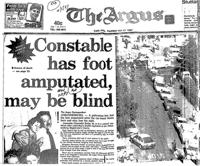 Constable has foot amputated, may be blind