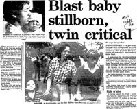 Blast baby stillborn, twin critical